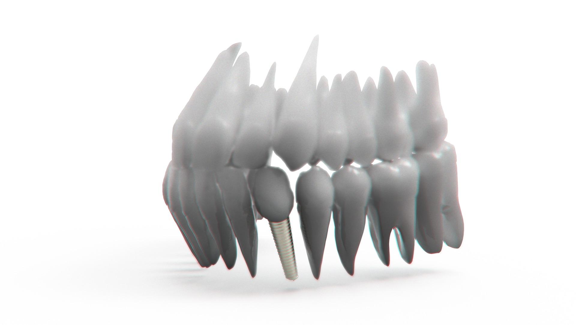 ¿Qué es un implante?