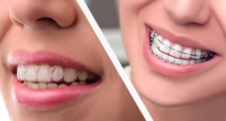 Ortodoncia invisible de Invisalign