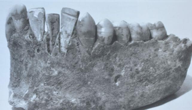 Breve historia de los implantes dentales